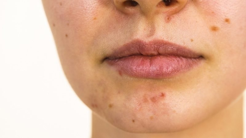 Young woman with spots | how to get rid of spots